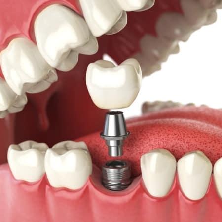 Dental Implants East Bay