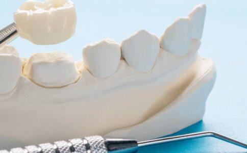 Tooth Repair Crowns